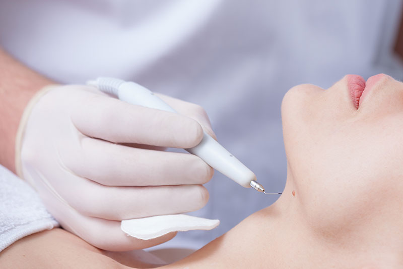 Park-Avenue-Dermatology-Wart-treatment